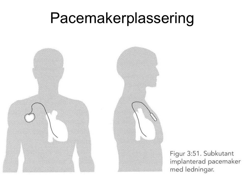 Pacemakerplassering