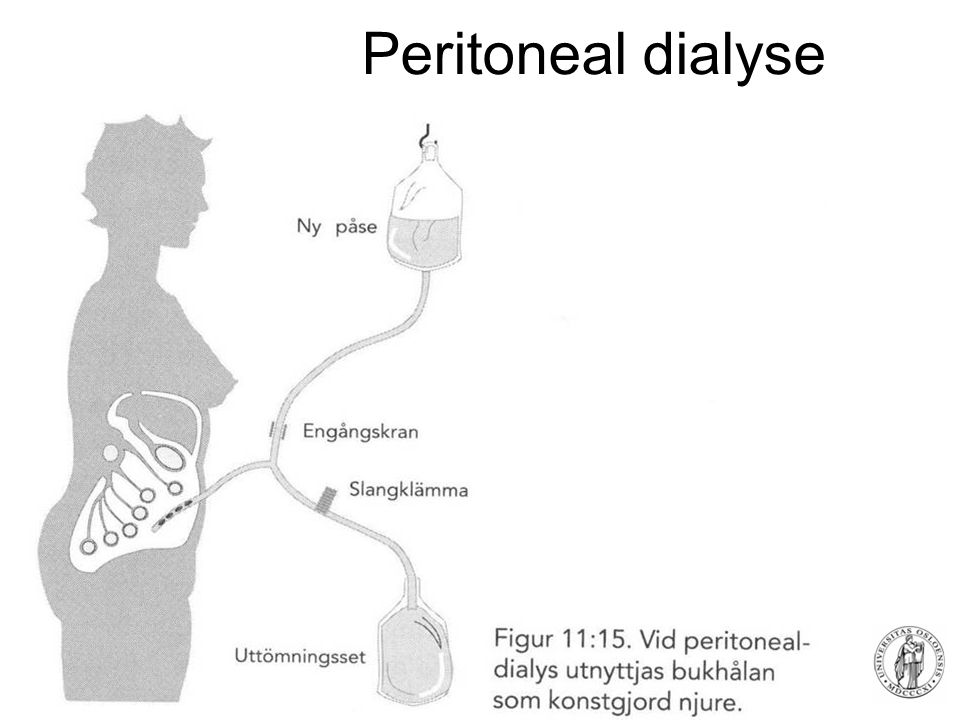 Peritoneal dialyse