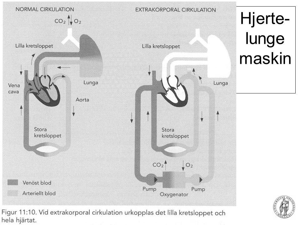 Hjerte-lunge maskin