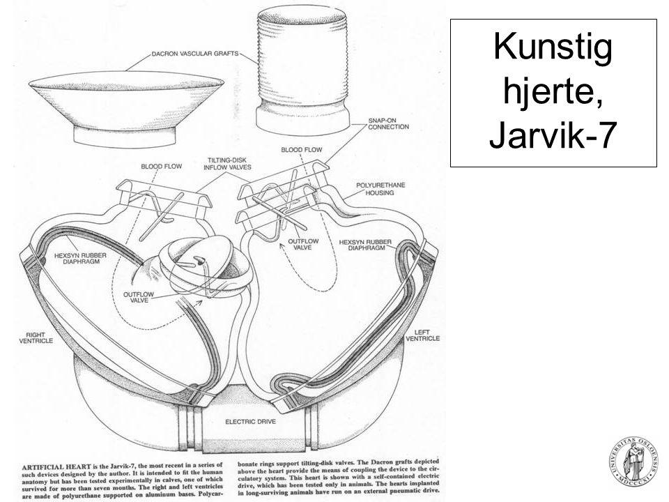 Kunstig hjerte, Jarvik-7