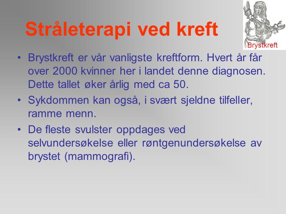 Stråleterapi ved kreft