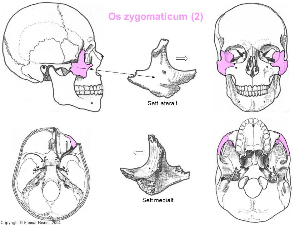 Os zygomaticum (2) Sett lateralt Sett medialt