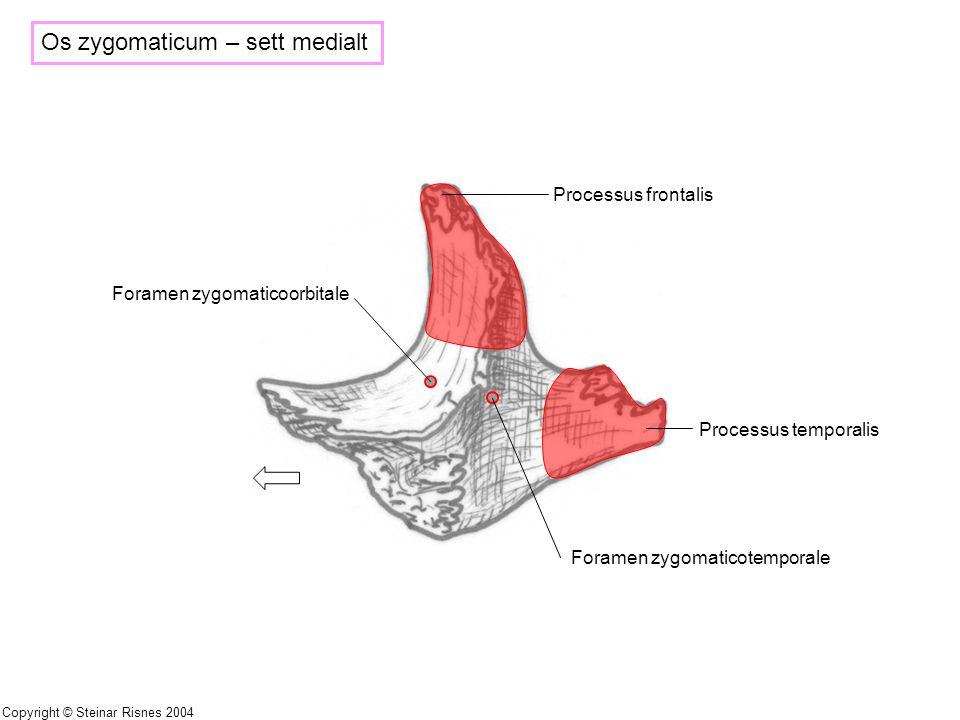 Os zygomaticum – sett medialt