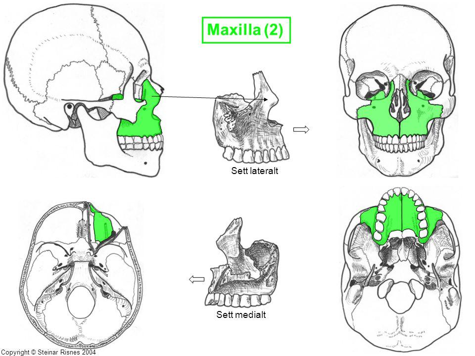 Maxilla (2) Sett lateralt Sett medialt Copyright © Steinar Risnes 2004