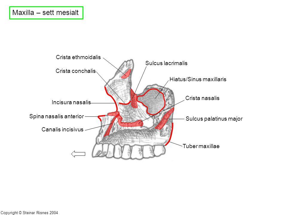 Maxilla – sett mesialt Crista ethmoidalis Sulcus lacrimalis
