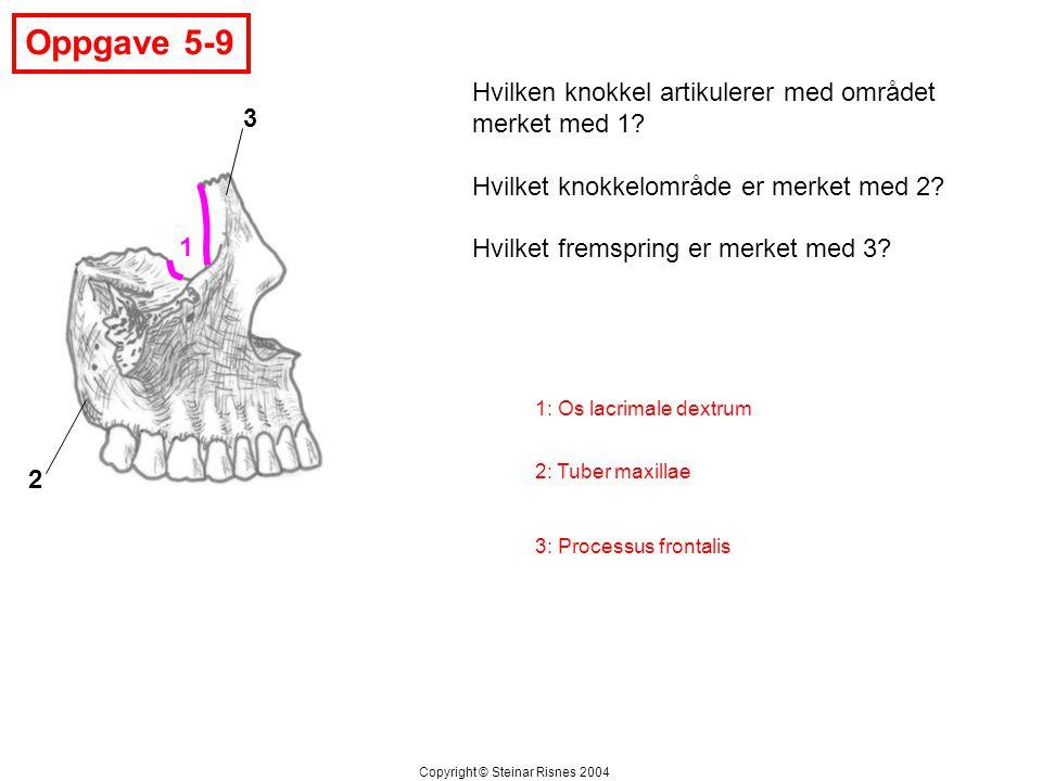 Oppgave 5-9 Hvilken knokkel artikulerer med området merket med 1 3