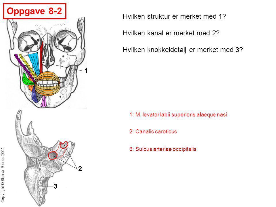 Oppgave 8-2 Hvilken struktur er merket med 1