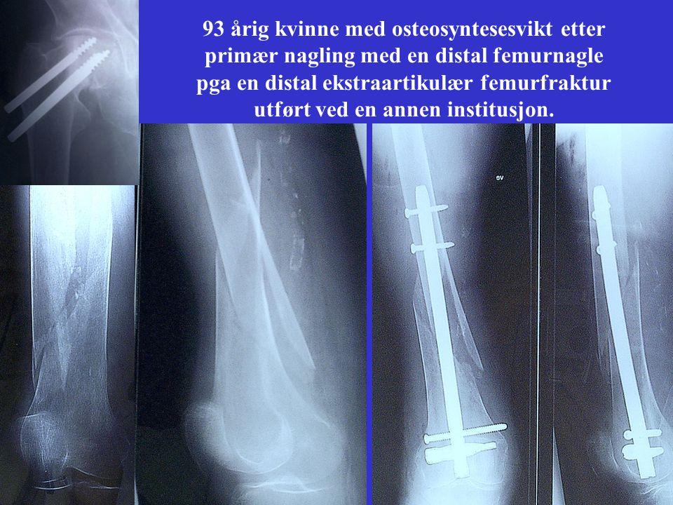 93 årig kvinne med osteosyntesesvikt etter primær nagling med en distal femurnagle pga en distal ekstraartikulær femurfraktur utført ved en annen institusjon.