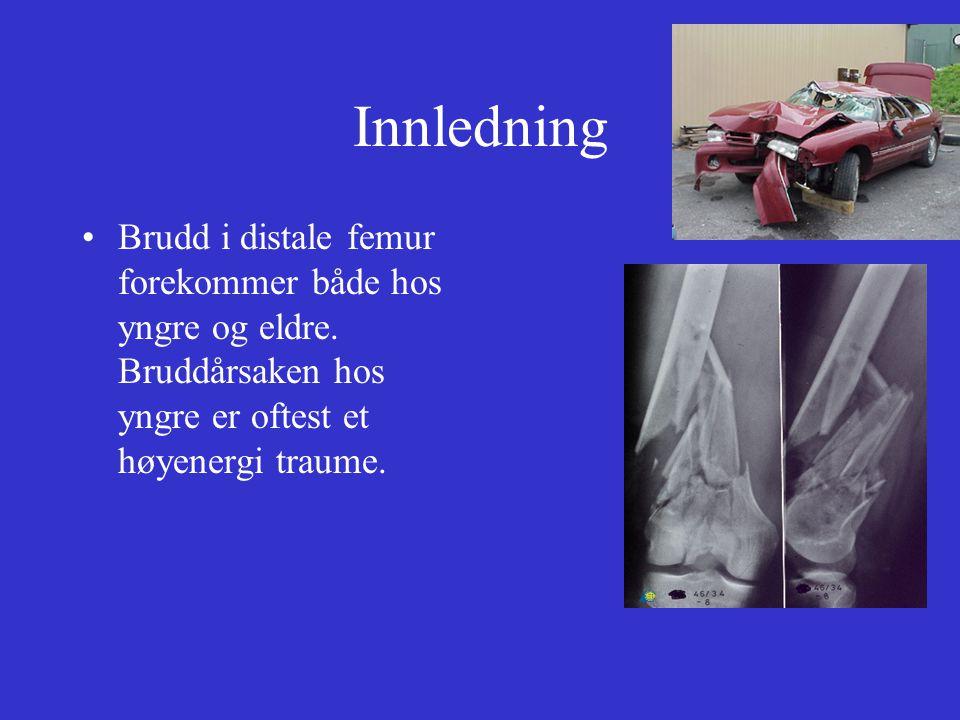 Innledning Brudd i distale femur forekommer både hos yngre og eldre.
