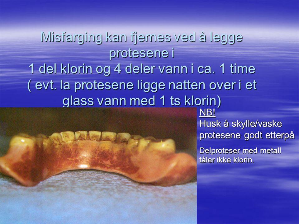 Misfarging kan fjernes ved å legge protesene i 1 del klorin og 4 deler vann i ca. 1 time ( evt. la protesene ligge natten over i et glass vann med 1 ts klorin)
