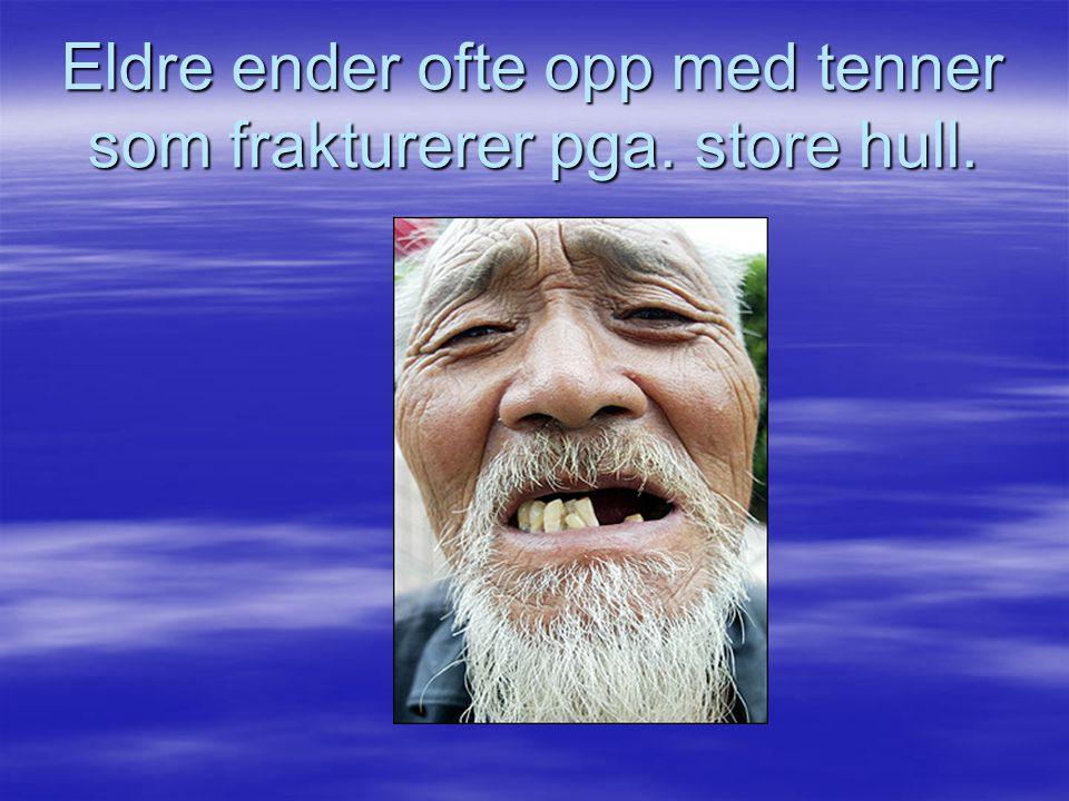 Eldre ender ofte opp med tenner som frakturerer pga. store hull.