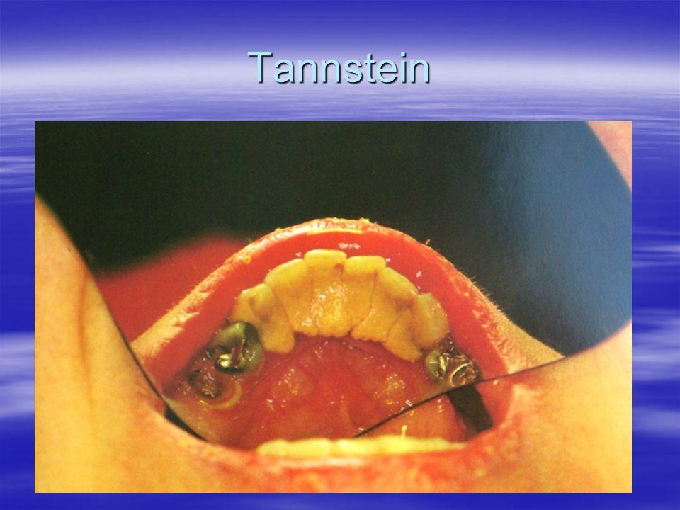 Tannstein
