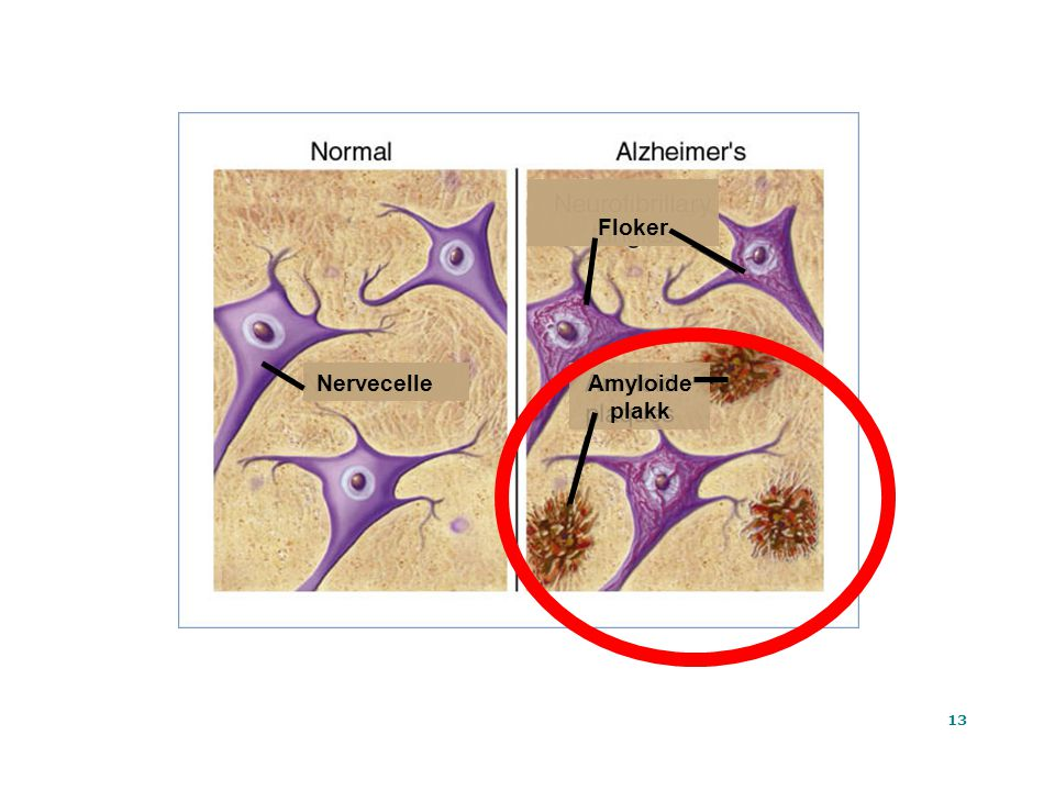 Floker Nervecelle Amyloide plakk Ta Tat At
