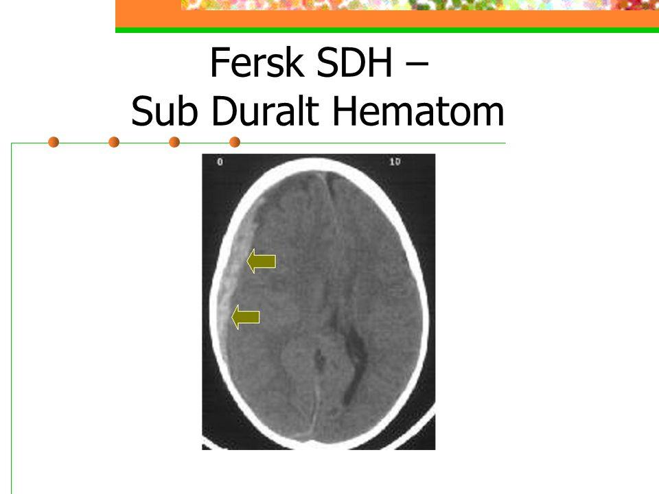 Fersk SDH – Sub Duralt Hematom