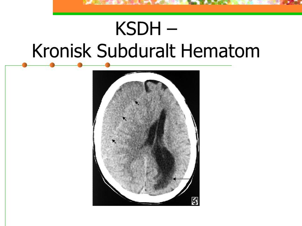 KSDH – Kronisk Subduralt Hematom