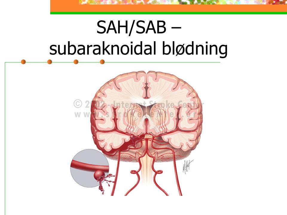 SAH/SAB – subaraknoidal blødning