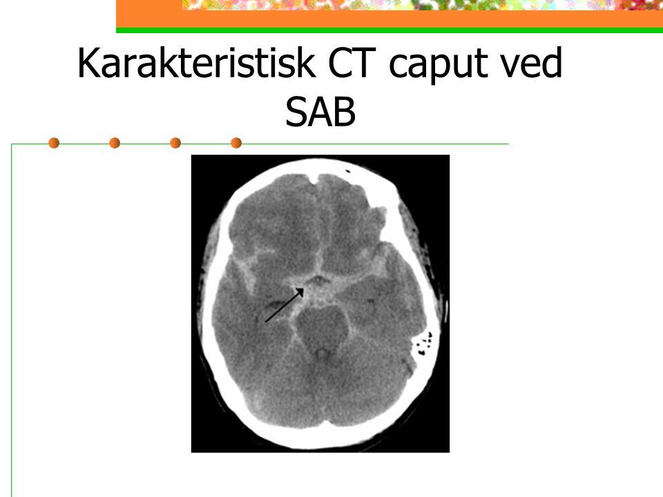 Karakteristisk CT caput ved SAB