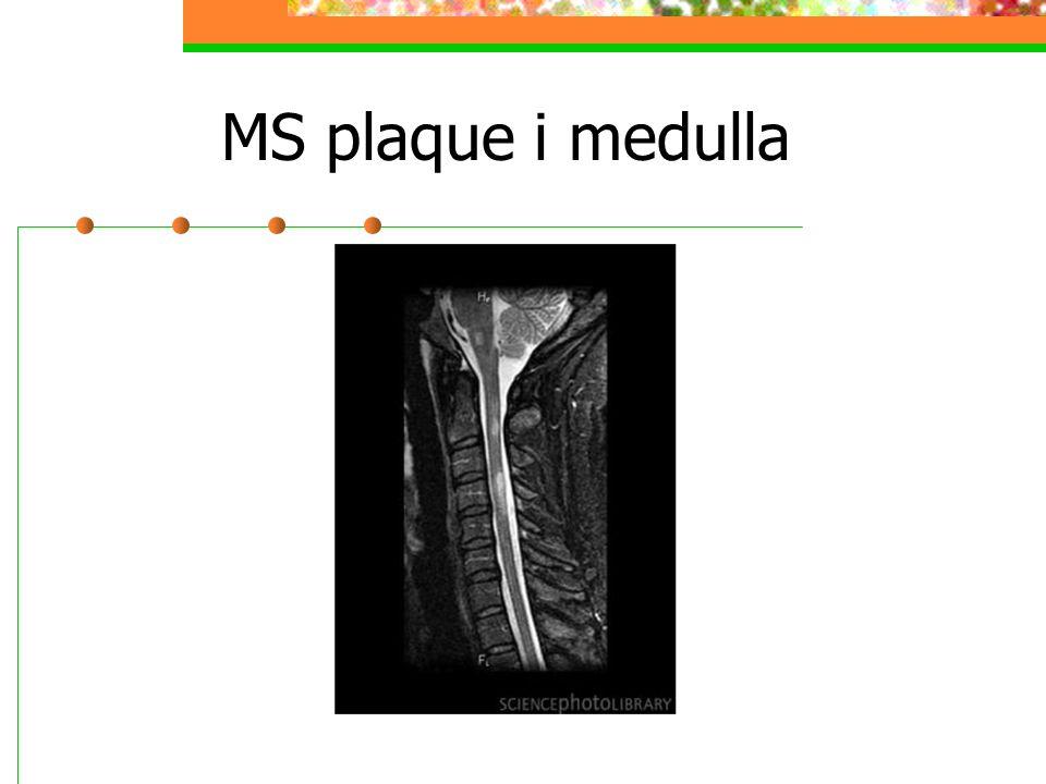 MS plaque i medulla