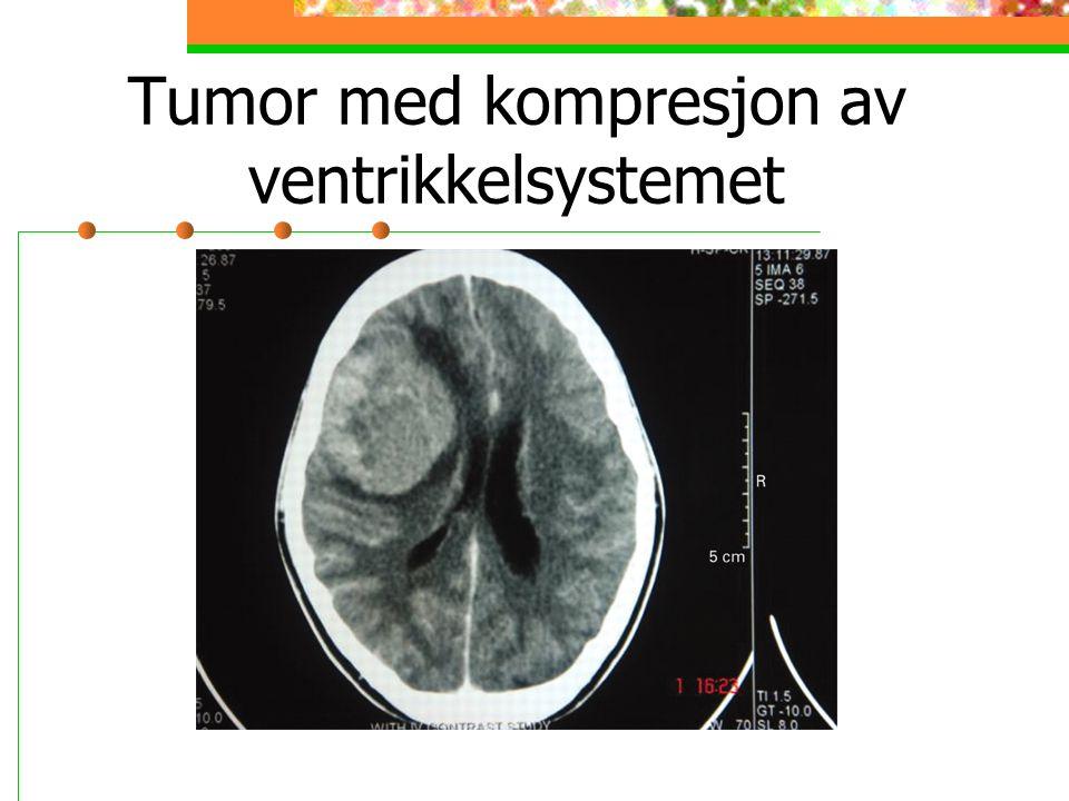 Tumor med kompresjon av ventrikkelsystemet