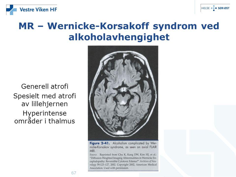 MR – Wernicke-Korsakoff syndrom ved alkoholavhengighet