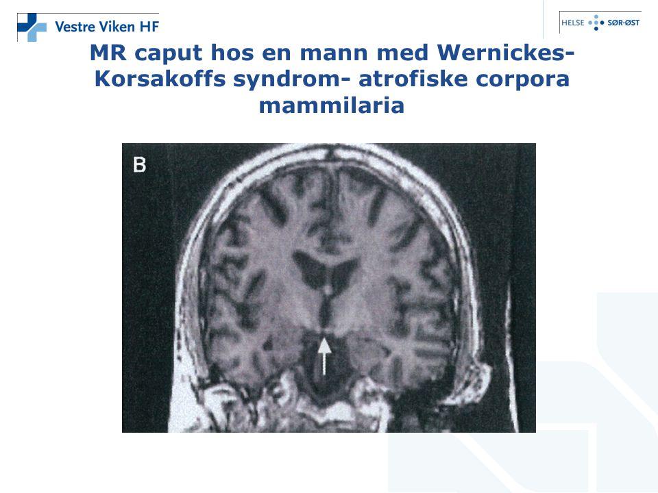 MR caput hos en mann med Wernickes-Korsakoffs syndrom- atrofiske corpora mammilaria