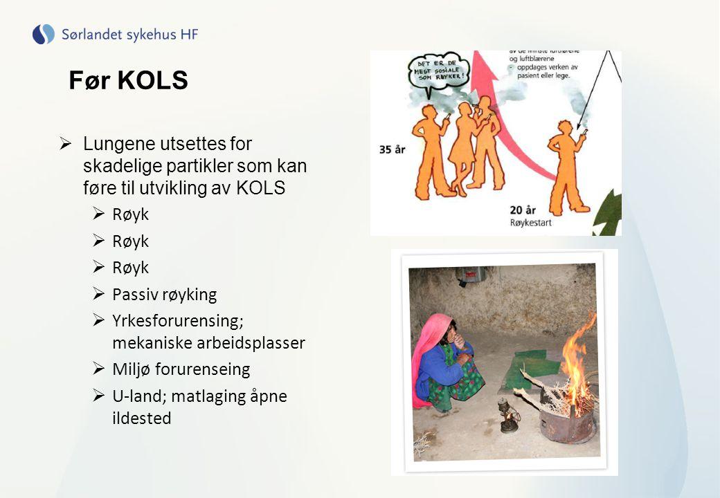 Før KOLS Lungene utsettes for skadelige partikler som kan føre til utvikling av KOLS. Røyk. Passiv røyking.