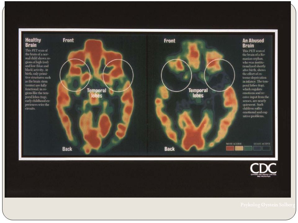 Skader på barnehjernen