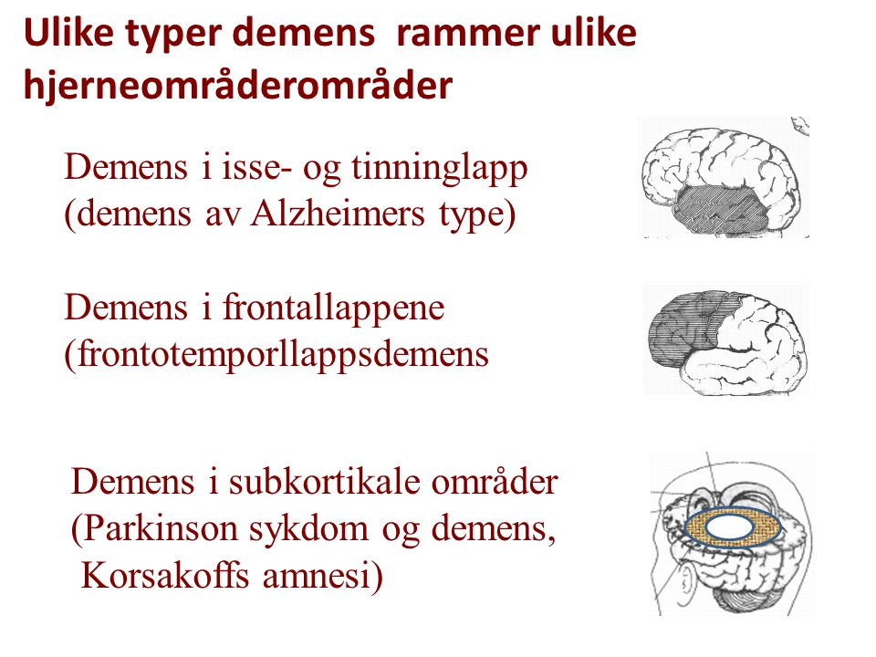 Ulike typer demens rammer ulike hjerneområderområder