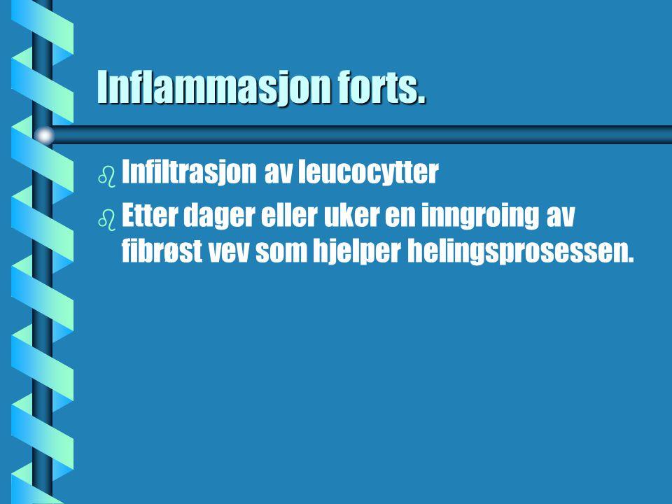 Inflammasjon forts. Infiltrasjon av leucocytter