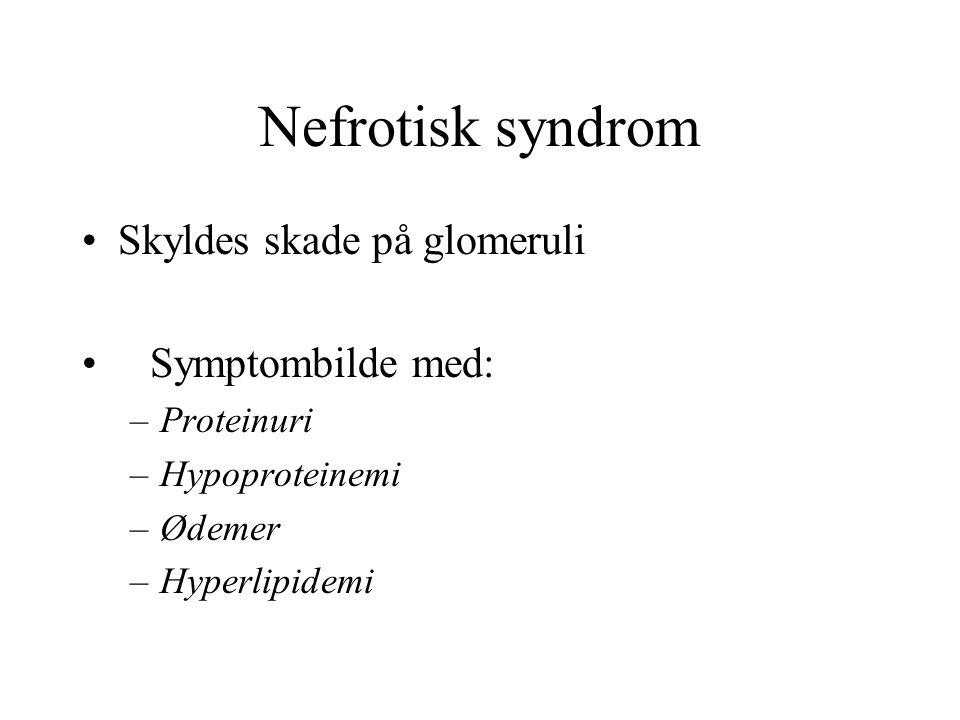 Nefrotisk syndrom Skyldes skade på glomeruli Symptombilde med: