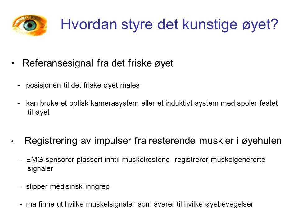 Hvordan styre det kunstige øyet