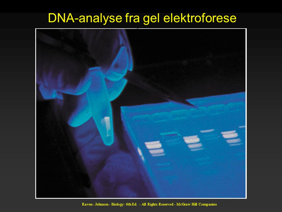 DNA-analyse fra gel elektroforese