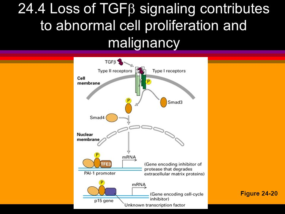 24.4 Loss of TGF signaling contributes to abnormal cell proliferation and malignancy