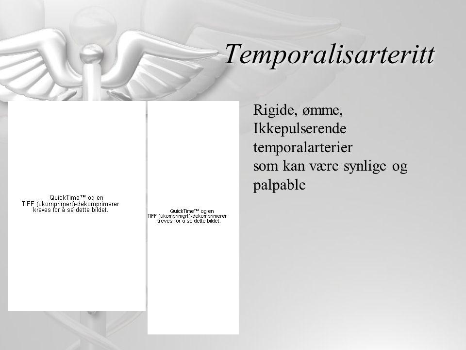 Temporalisarteritt Rigide, ømme, Ikkepulserende temporalarterier