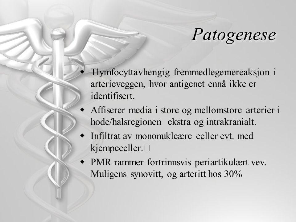 Patogenese Tlymfocyttavhengig fremmedlegemereaksjon i arterieveggen, hvor antigenet ennå ikke er identifisert.