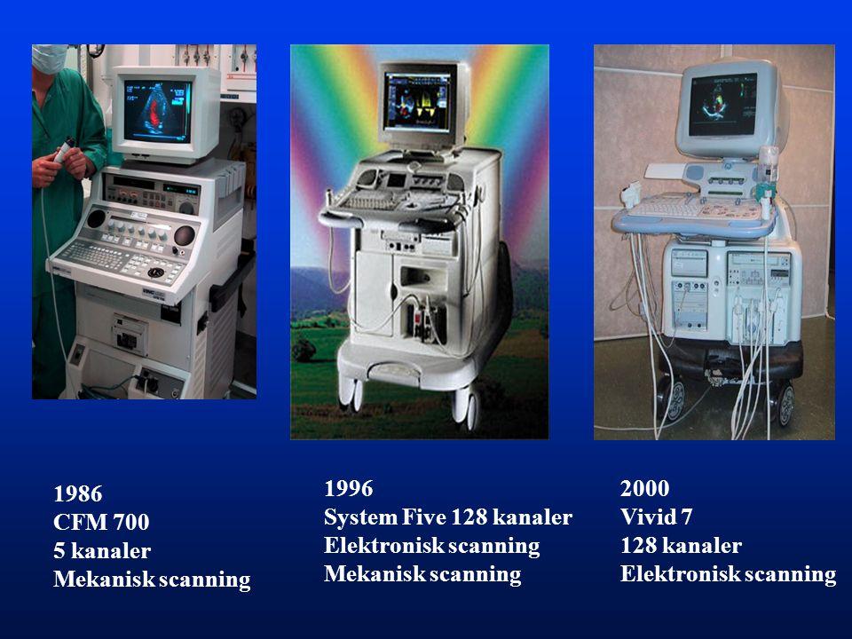 1996 System Five 128 kanaler. Elektronisk scanning. Mekanisk scanning. 2000. Vivid 7. 128 kanaler.