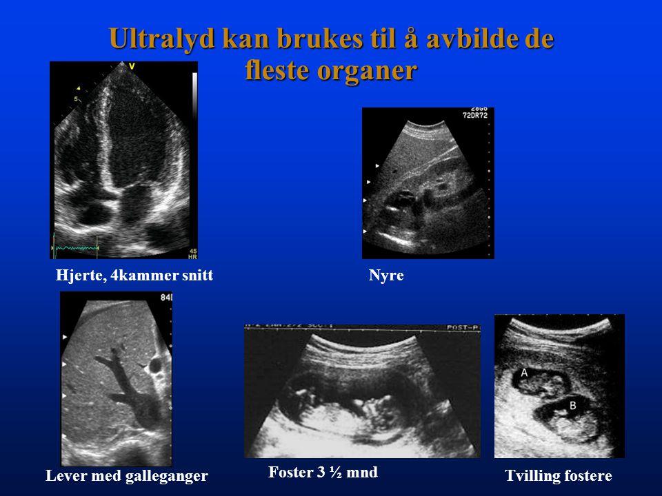 Ultralyd kan brukes til å avbilde de fleste organer