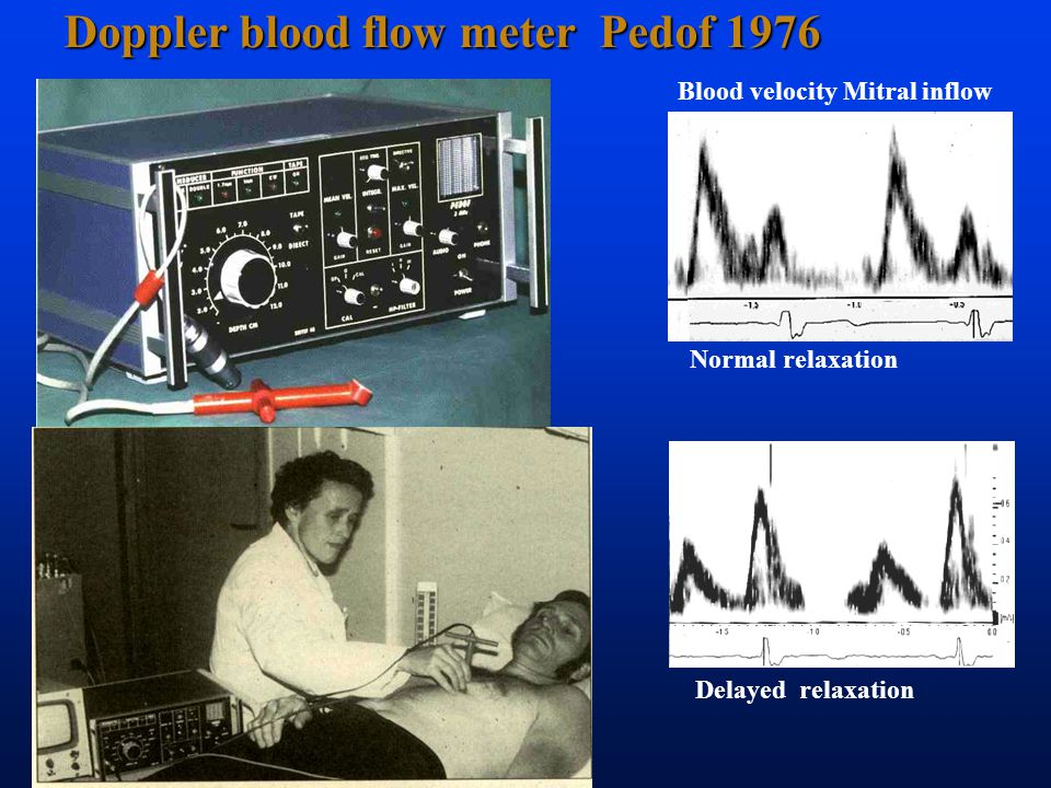Doppler blood flow meter Pedof 1976