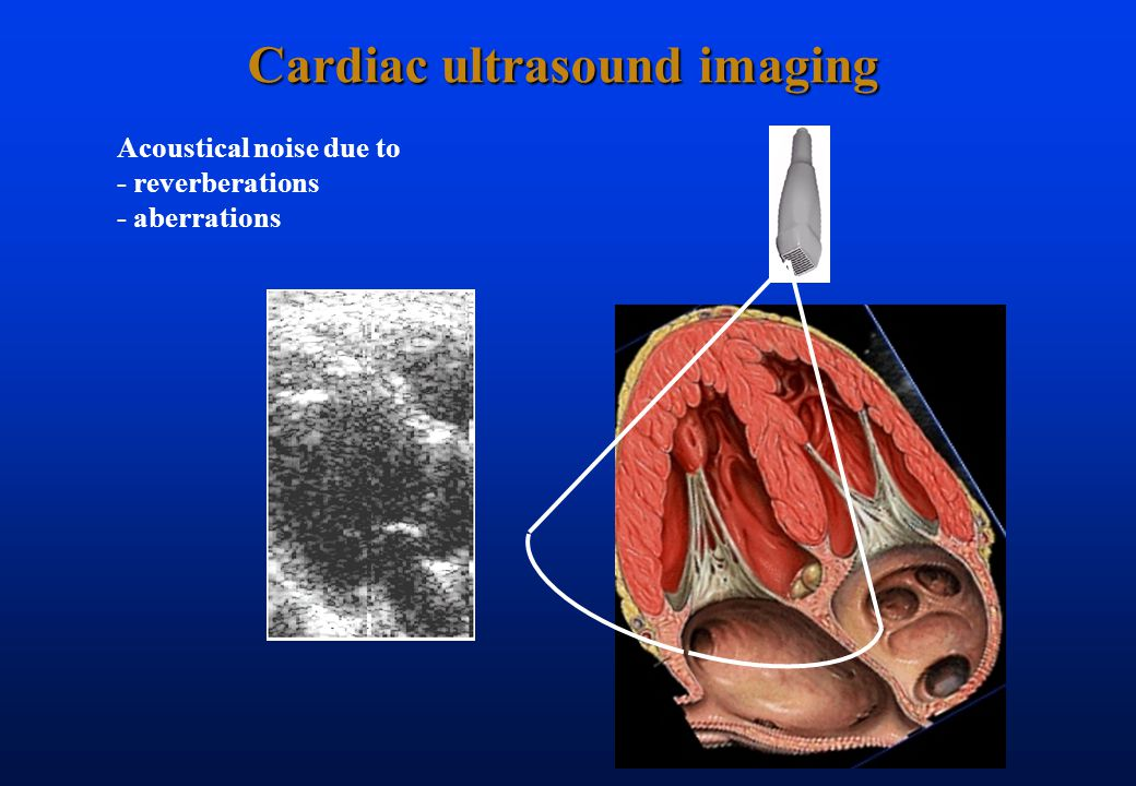Cardiac ultrasound imaging