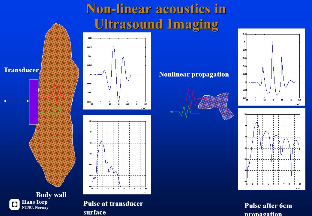 Non-linear acoustics in Ultrasound Imaging