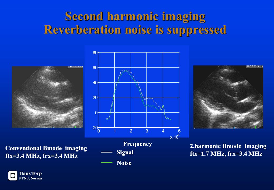 Second harmonic imaging Reverberation noise is suppressed