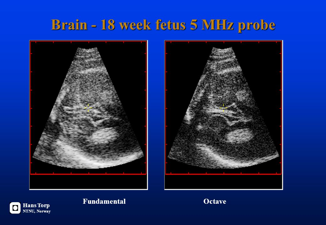 Brain - 18 week fetus 5 MHz probe