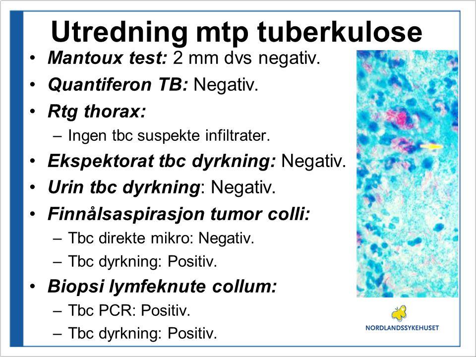 Utredning mtp tuberkulose