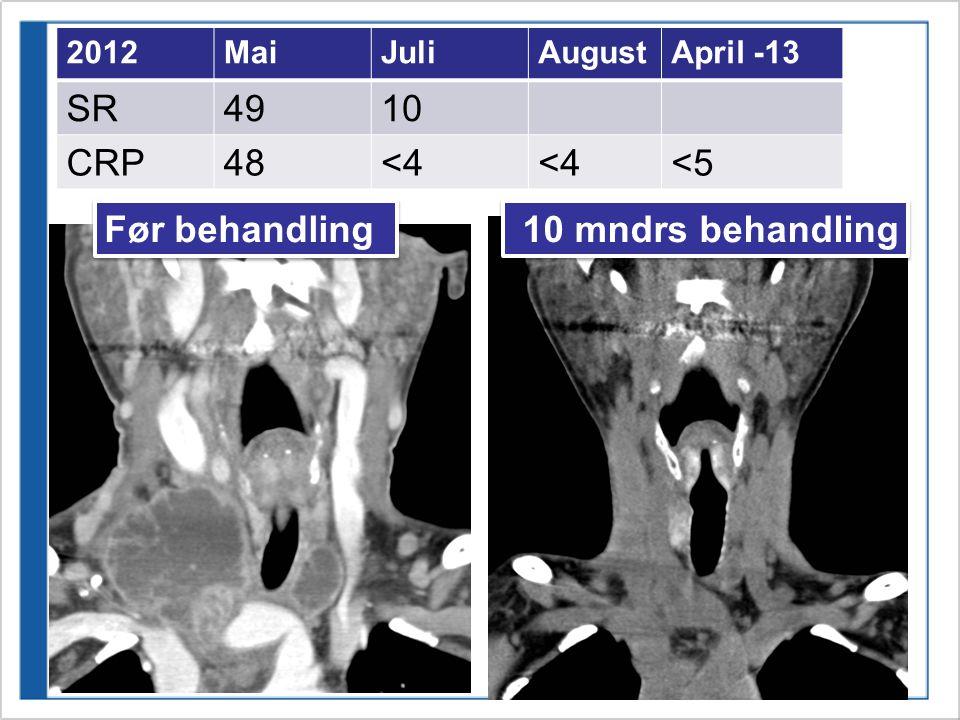 SR 49 10 CRP 48 <4 <5 Før behandling 10 mndrs behandling 2012