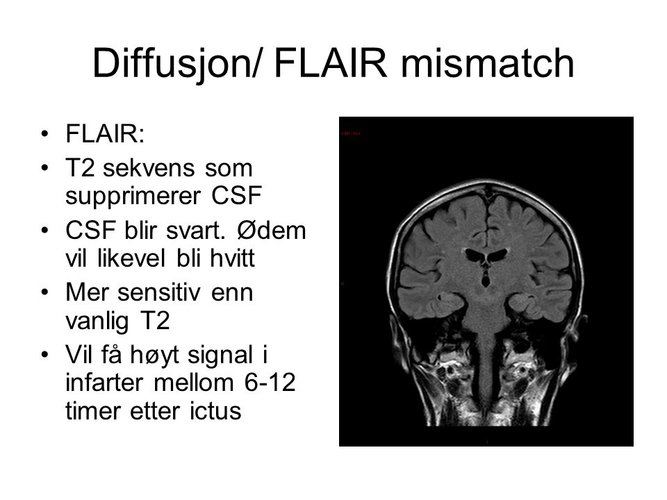 Diffusjon/ FLAIR mismatch