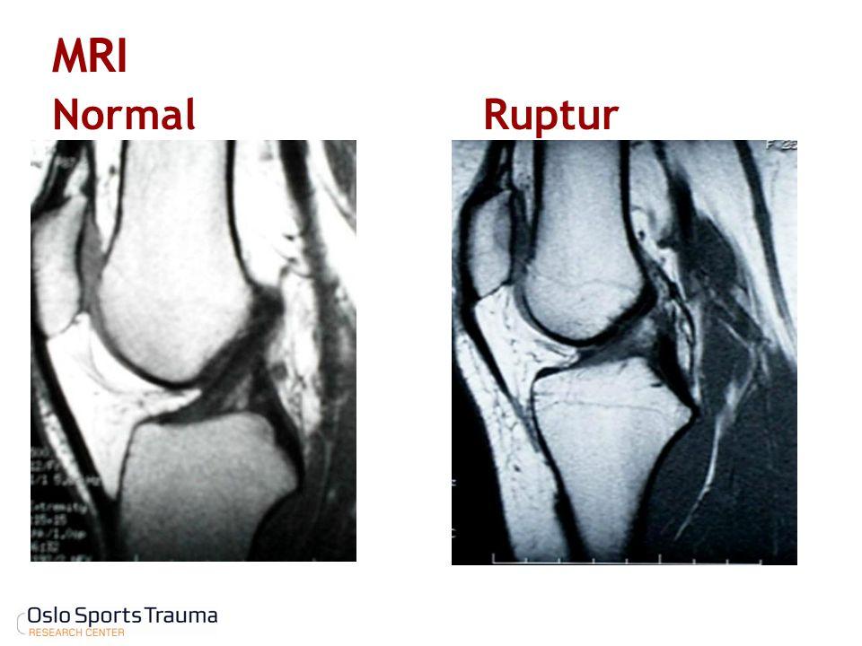MRI Normal Ruptur