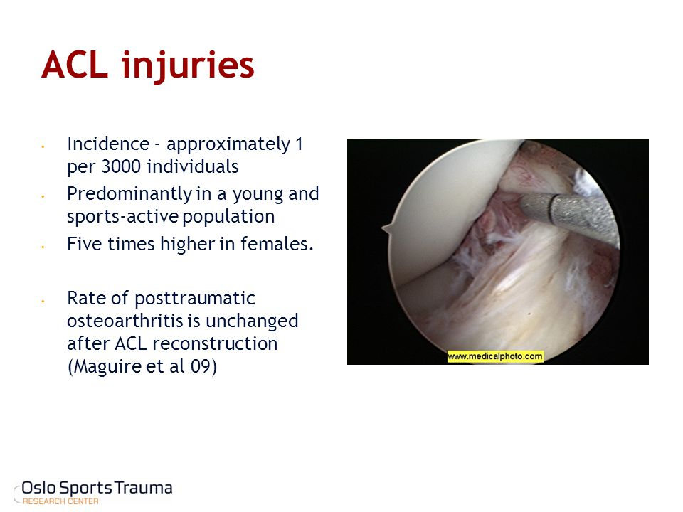 ACL injuries Incidence - approximately 1 per 3000 individuals