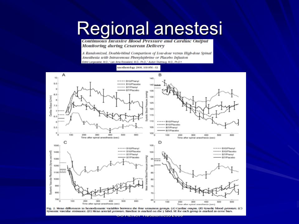 Regional anestesi GG ALNSF Høstkonress 2009
