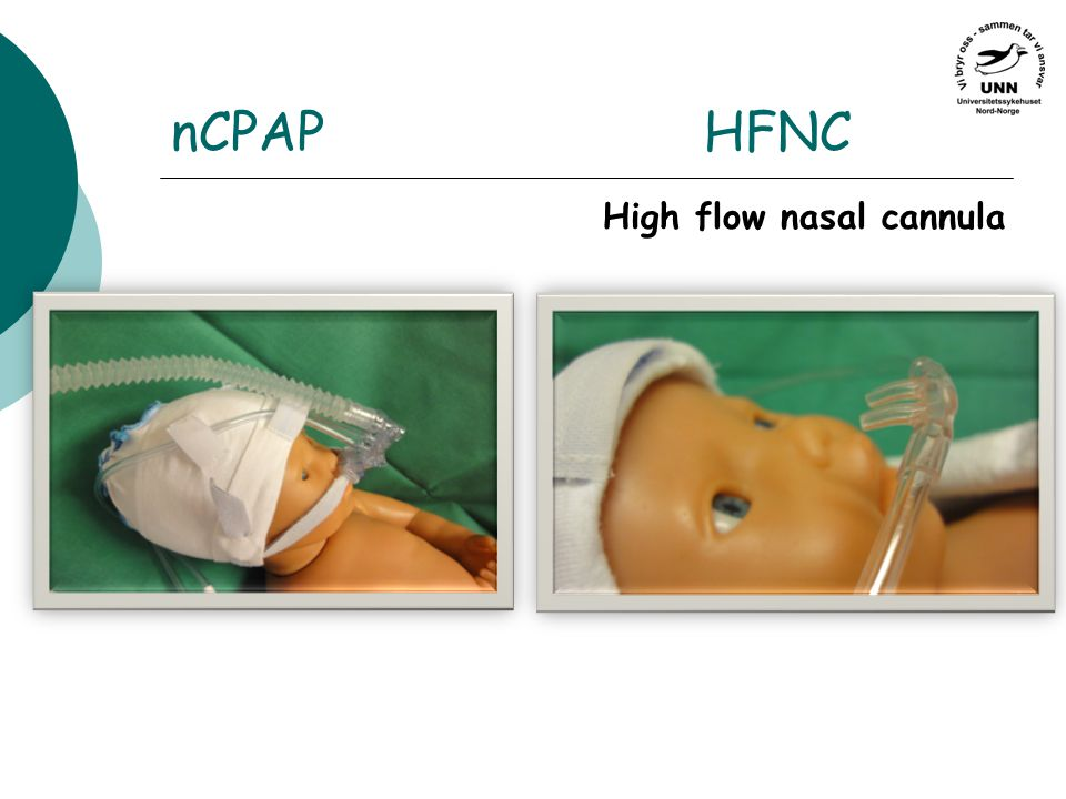 nCPAP HFNC High flow nasal cannula