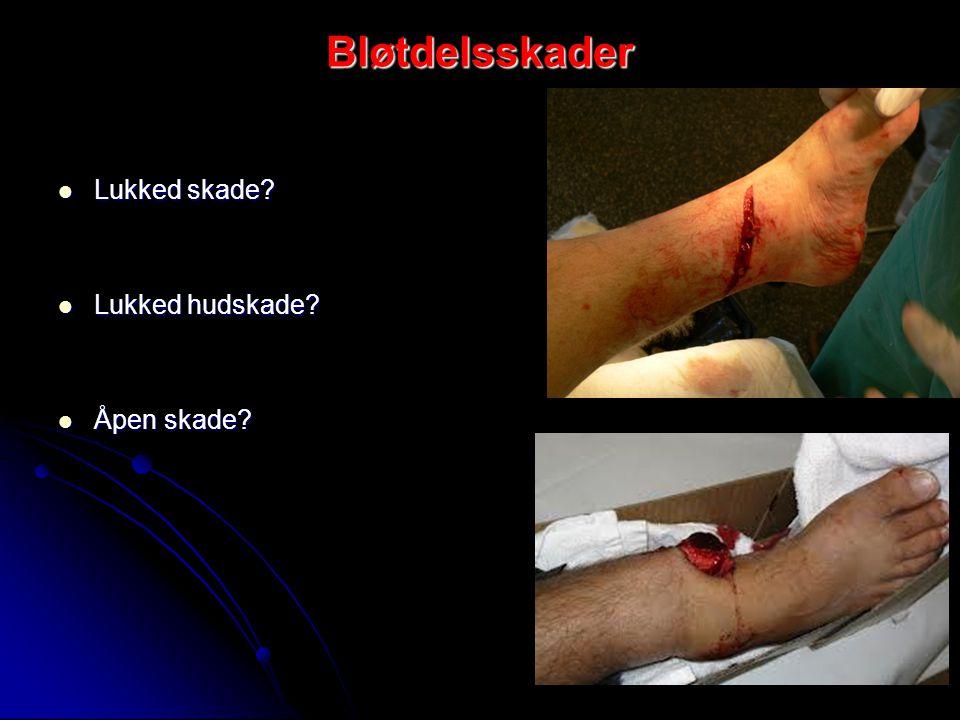 Bløtdelsskader Lukked skade Lukked hudskade Åpen skade